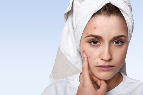 8 Effective Home Remedies For Acne