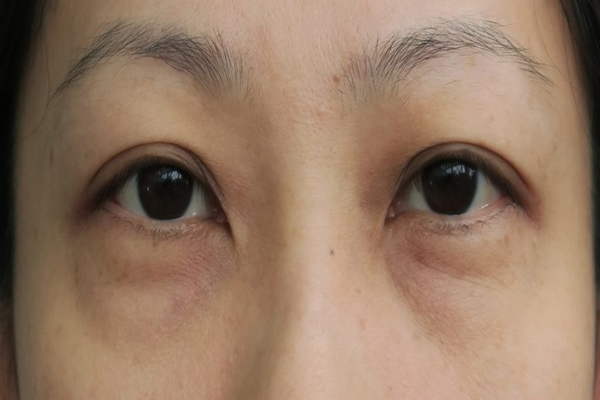 5 Home Remedies On How To Get Rid Of Eye Bags