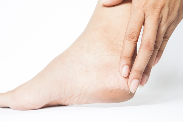 6 Home Remedies To Remove Cracked Heels