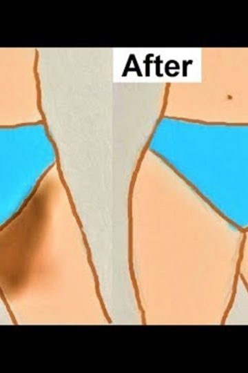 Remedies to Lighten the Dark Skin in Pubic Area
